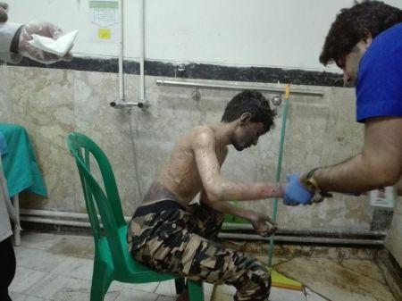 اخبار,اخبار حوادث,حوادث چهارشنبه سوری
