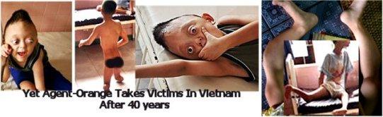 پس از چهار دهه؛ «ایجنت اورنج» همچنان در ویتنام قربانی می گیرد
