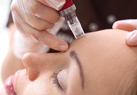 مزوتراپی مو چیست, مزوتراپی برای لاغری