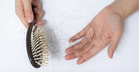ریزش مو زیر بیست سال