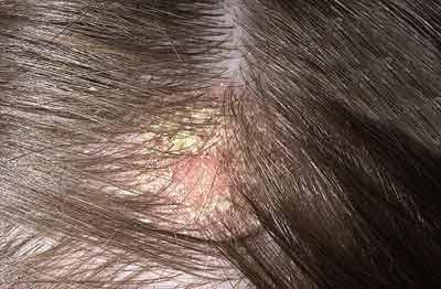 شوره سر,پوستهسر,موهای پوست سر ,عفونت قارچی