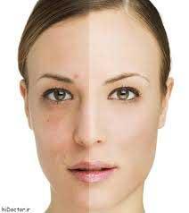 آكنه, بیماری التهابی مزمن پوست