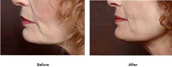 بهداشت و زيبايي: زیبایی صورت با طب سوزنی و گیاهان کلاژن ساز
