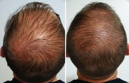 مزوتراپی مو ,مزوتراپی پوست,ریزش مو
