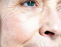 چینوچروک صورت,کاهش چینوچروک صورت, پوستی صاف و شفاف