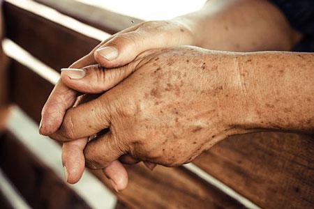 لکه های قهوه ای دست ,متخصص پوست و مو
