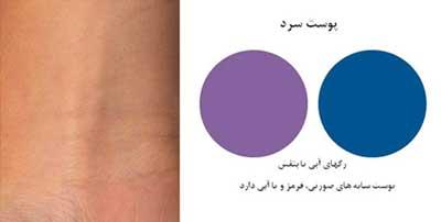 بهداشت و زيبايي: چگونه رنگ پوست مان را تشخیص دهیم؟