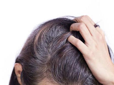 راهکارهایی ساده برای جلوگیری از سفید شدن موها
