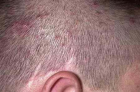 درمان جوش چرکی در سر