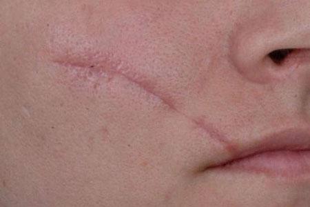 پاک کردن جای زخم از روی پوست