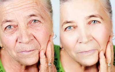 مراقبت از پوست, جوان نگه داشتن پوست,پوست صورت,http://www.oojal.rzb.ir/post/980