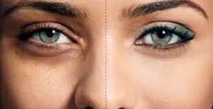 سیاهی دور چشم,گودی دورچشم,تیرگیهای چشم,http://www.oojal.rzb.ir/post/1066