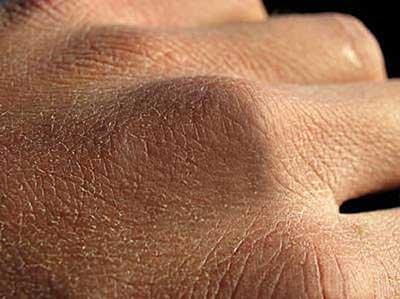 خشکي پوست ,خشکي پوست شديد,تيرگي پوست