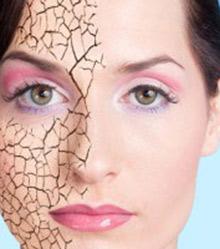 خشکی پوست,مراقبت از پوست,متخصص پوست