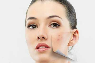 ar4 3590 چگونه چرب شدن پوست را به عقب بیندازیم؟