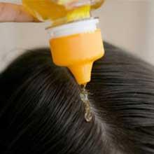درمان ریزش مو,ریزش مو,رشد دوباره مو