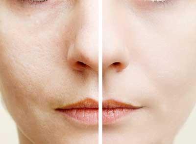 روش های طبیعی و دائمی برای پاکسازی و کاهش منافذ پوست