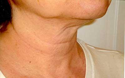 شل شدن و افتادگی پوست, مراقبت از پوست