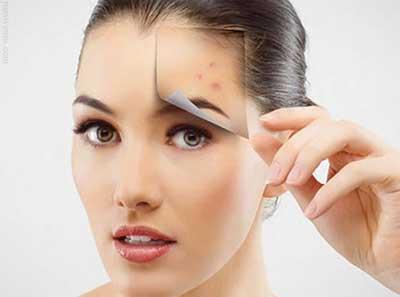 درمان جوش لک صورت