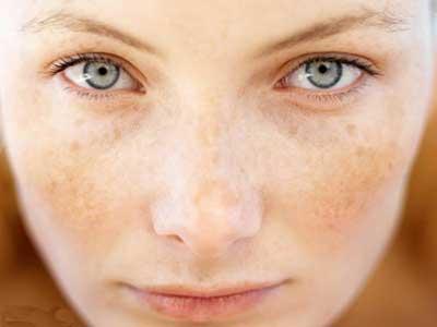چطور لکه های قهوه ای پوست را از بین ببرید؟
