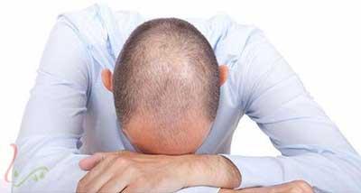 مهمترین علت ریزش مو