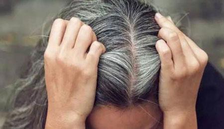 رنگ نگرفتن موهای سفید