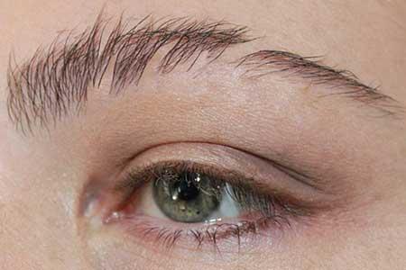 ar4 4701 - علت ریزش موی ابرو و راه درمان آن