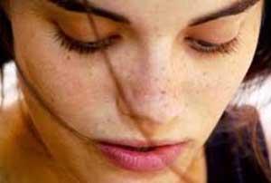 درمان لکهای پوستی