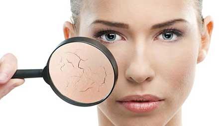 علت خشکی پوست شما در زمستان