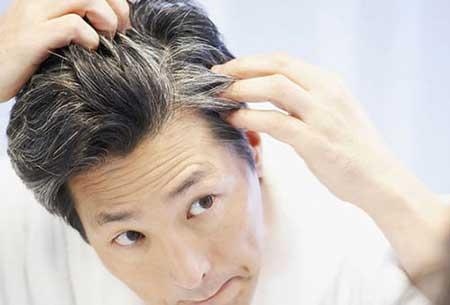 پیشگیری از سفید شدن مو