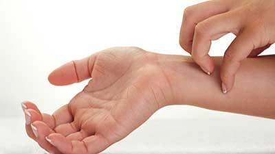 حساسیت پوستی خارش
