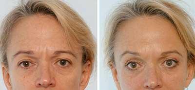 در بوتاکس، پوست فرد مهم است یا سن او ؟