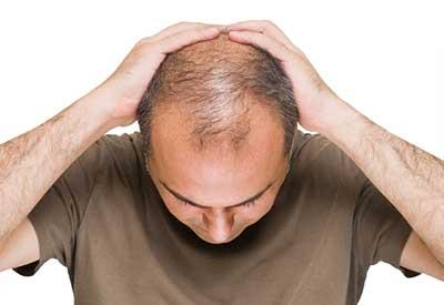 پایانی بر ریزش مو با 14 فرمول طبیعی