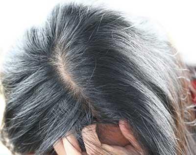 روش جلوگیری از سفید شدن مو