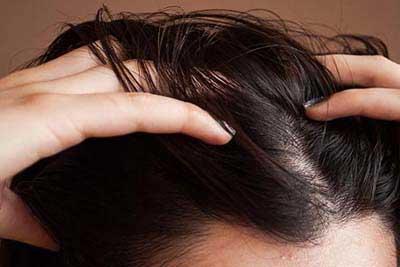 موی چرب