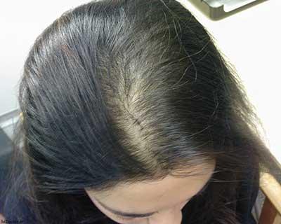 برای جلوگیری از ریزش مو