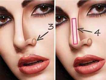 نحوه کانتور کردن انواع مدلهای بینی