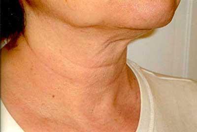 پیشگیری از چروک پوست گردن