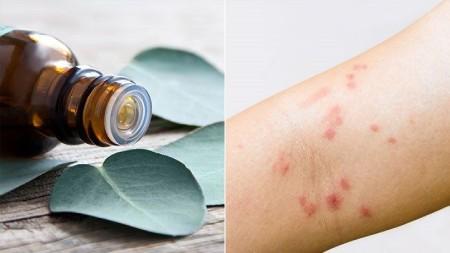 درمان و رفع اگزما | اگزما را با گیاهان دارویی ریشهکن کنید
