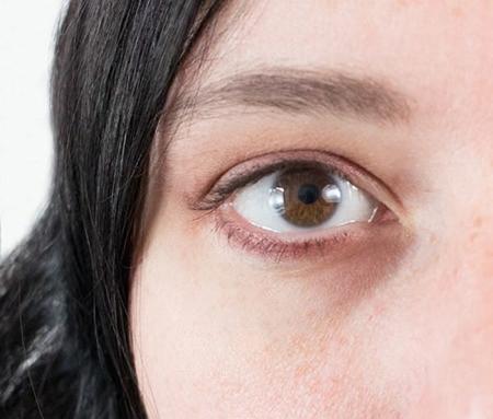رفع تیرگی زیر چشم,از بین بردن سیاهی دور چشم
