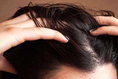 موثرین روش در درمان ریزش مو