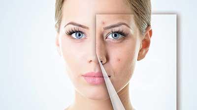 جوش صورت و درمان