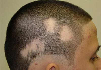 ریزش موی سکهای