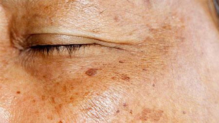 مقابله با لک های پوست