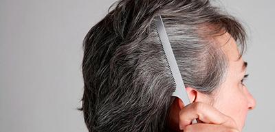 رفع سفیدی مو