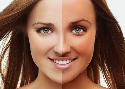 برنزه کردن پوست