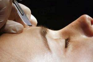 اثر درمانی لیزر بر پوست چیست؟