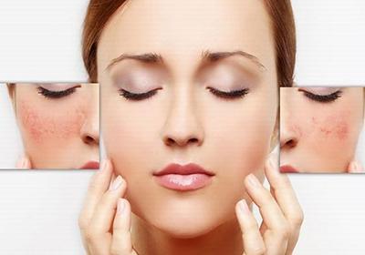 درمانهای ساده برای رفع قرمزی پوست