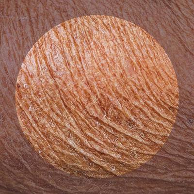 بیمای های پوستی ناشی از استرس