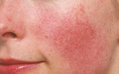 قرمزی پوست صورت و درمان آن